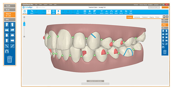 Image result for invisalign clincheck